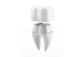 Dental Crowns - 01