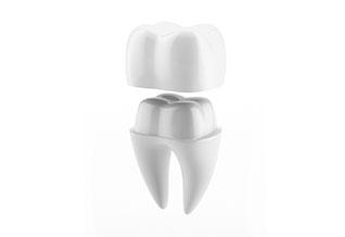 Dental Crowns – 01