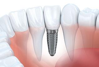 Dental Implants-01