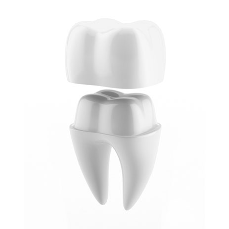 Dental Crowns - 01