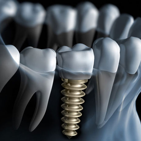 Dental Implants-01